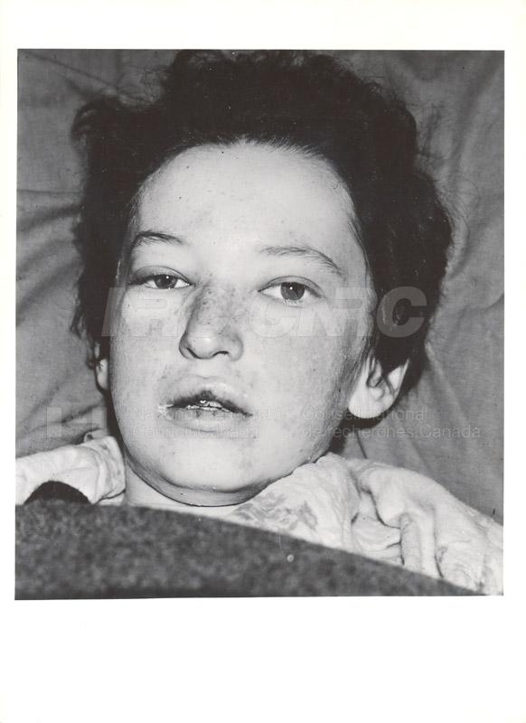 Lupus Erythematosis 1949-1951 001